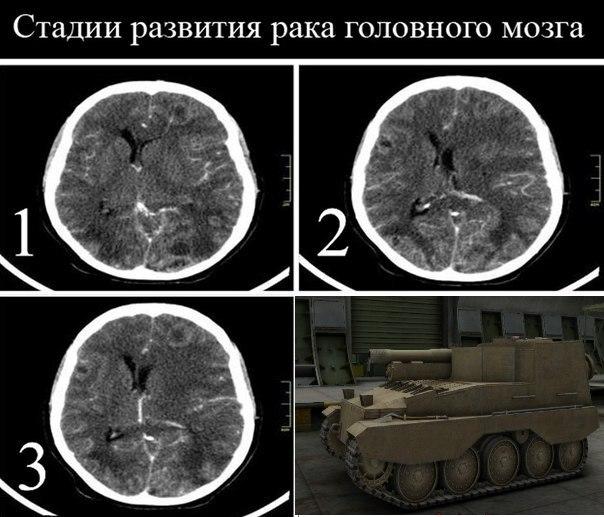 Рак мозга симптомы признаки болезни